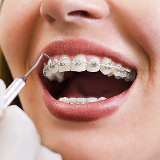 Closeup of smile during traditional braces placement